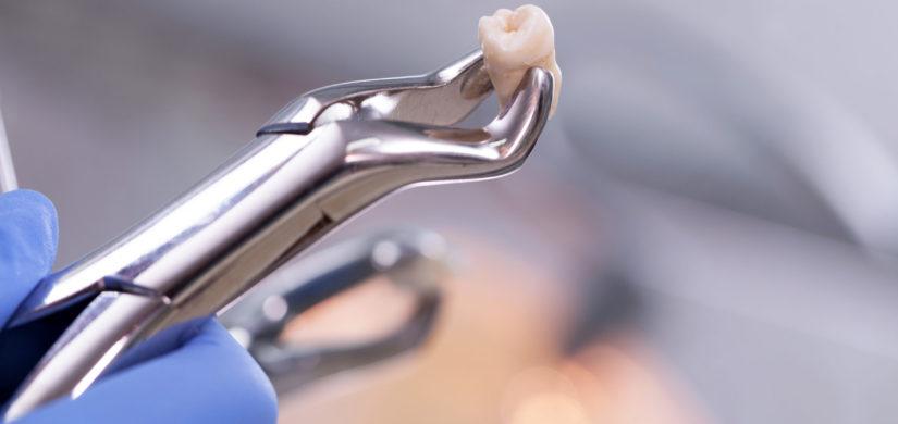 Chirurgia orale estrattiva e dei terzi molari