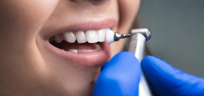 Igiene orale professionale -studio dentistico Guido Garau - Cagliari
