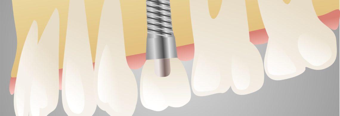 Dente e impianto dentale - Studio dentistico Guido Garau - Cagliari
