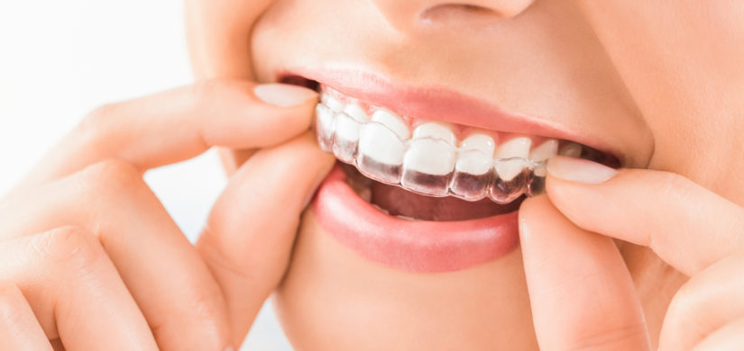 Ortodonzia - Studio dentistico Guido Garau - Cagliari